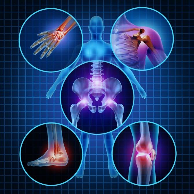 Заболевание суставов артрит или артроз какие мази при артрите коленного сустава