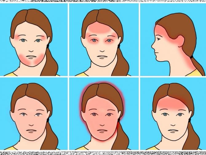 Во время секса сильно заболела голова и не перестала